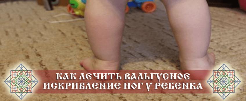Как лечить вальгусное искривление ног у ребенка