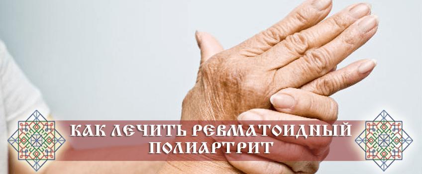 Как лечить ревматоидный полиартрит народными средствами